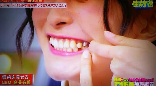 金澤有希 歯